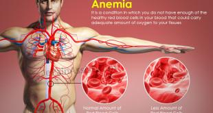 que-es-la-anemia (1)
