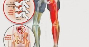 ejercicios-ciatica