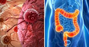 Cómo-detectar-los-posibles-síntomas-de-cáncer-de-colon