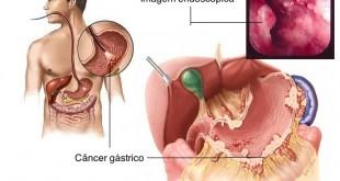 Cancer-gastrico-y-su-cura