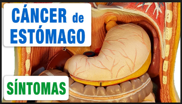 Síntomas del cáncer de estomago