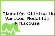 Atención Clínica De Varices Medellín Antioquia